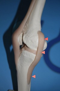 Bild eines Innenbandes im Kniegelenk